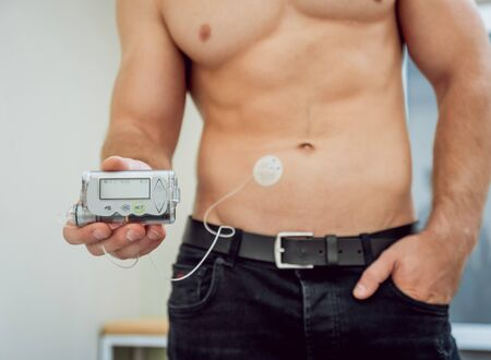 Diabetic man with an insulin pump connected in his abdomen and holding the insulin pump at his hands. Diabetes concept.
