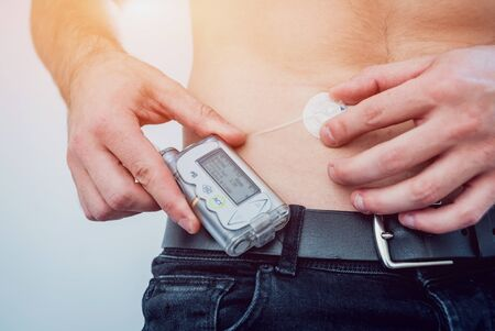 Diabetic man with an insulin pump connected in his abdomen and keeping the insulin pump on his belt. Diabetes concept. Stock fotó