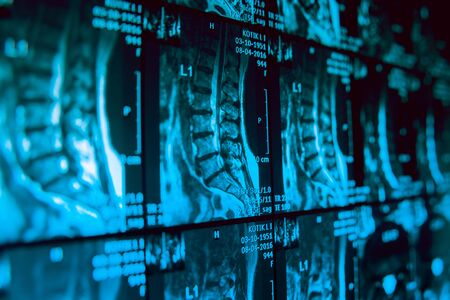 Medical equipment. MRI picture. Modern medical background