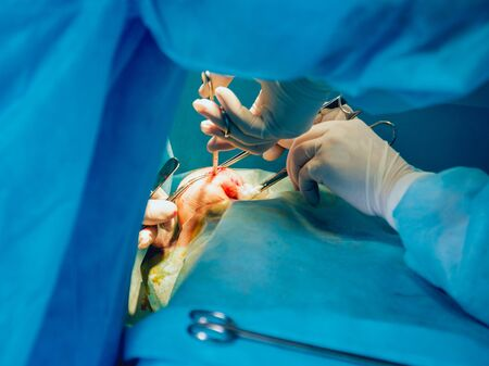 Breast surgery in the operating room. Hospital.