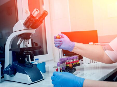 Laboratory assistant conducts a blood test. Medical equipment. Stock Photo