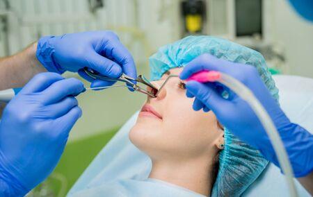 Laser vaporization of nasal concha with coblation technology method