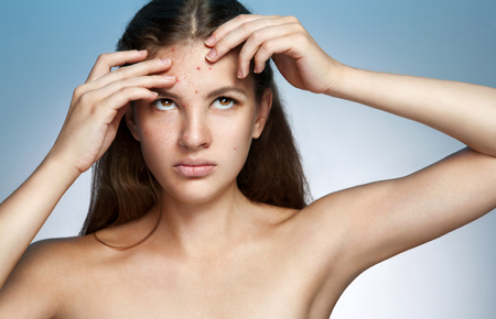 grig: Ugly problem skin girl. Woman skin care concept - photos of Latina girl on blue background