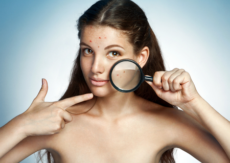 Teen girl with problem skin look at pimple with magnifying glass. Woman skin care concept - photos of Latina girl on blue background Stock Photo