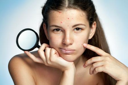 dermatologo: La ragazza con un viso brufoloso tiene lente di ingrandimento. La donna la cura della pelle concetto - foto di Latina ragazza su sfondo blu