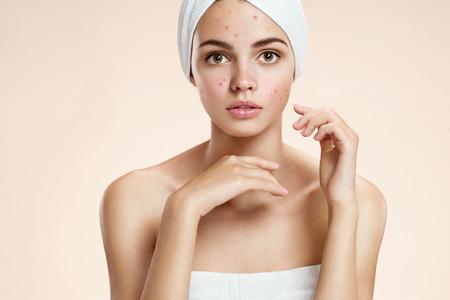 mujer fea: fotos de ni�a fea piel del problema sobre fondo beige Foto de archivo