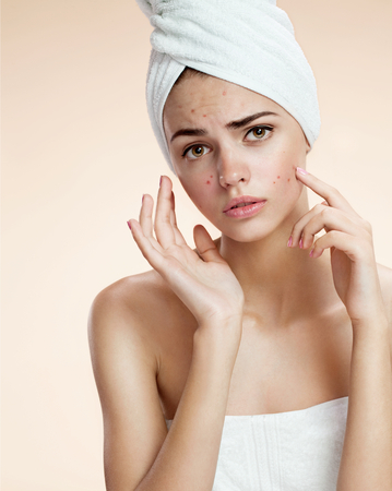 photos of ugly problem skin girl on beige background