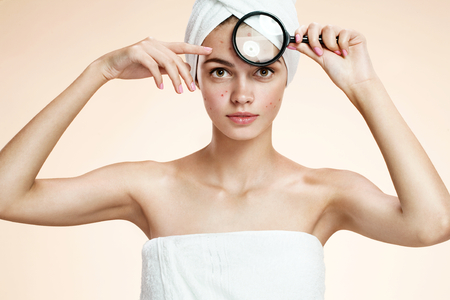 skin care woman: photos of ugly problem skin girl on beige background