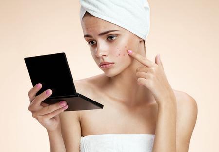 ベージュ色の背景上で醜い問題皮膚女の子の写真 写真素材