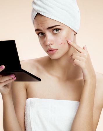 grig: photos of ugly problem skin girl on beige background