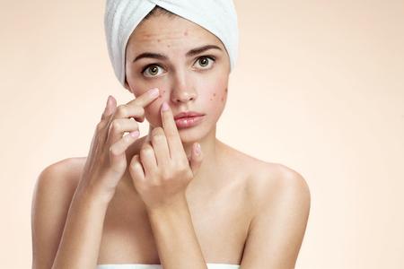 mujer fea: fotos de niña fea piel del problema sobre fondo beige Foto de archivo