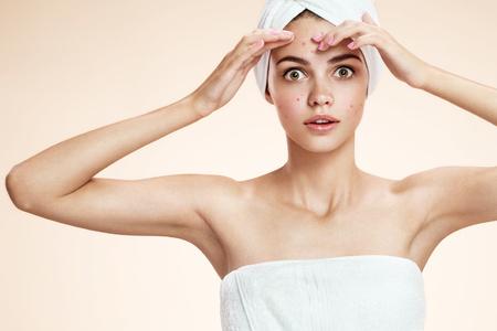 visage: photos de laide fille de la peau de probl�me sur fond beige