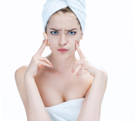 scowling: Scowling girl pointing at her acne with a towel on her head. Woman skin care concept, photos of ugly problem skin girl on white background
