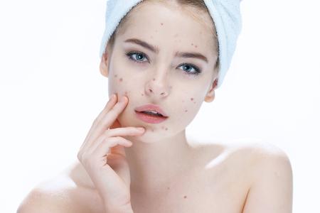 mujer maquillandose: chica fea piel del problema. Mujer del concepto del cuidado de la piel. fotos de muchacha europea sobre fondo blanco Foto de archivo