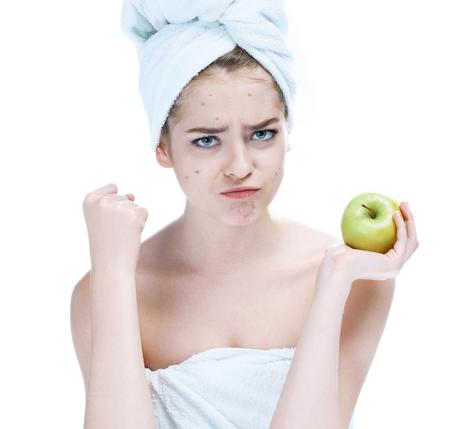 Mädchen mit einem pickligen Gesicht hält Apfel. Frau Hautpflege-Konzept Fotos von europäischen Mädchen auf weißem Hintergrund