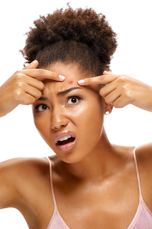 Young girl in shock of her acne. Photo of african american girl with problem skin on white background. Skin care concept 版權商用圖片