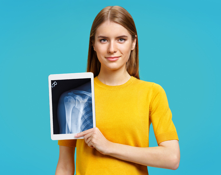 Girl shows x-ray of shoulder joint. Photo of young girl with tablet in her hands on blue background. Medical concept