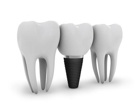 molares: implante dental, y dos molares en blanco Foto de archivo