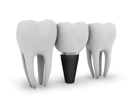 dental background: tooth implant, and two molars on white  Stock Photo