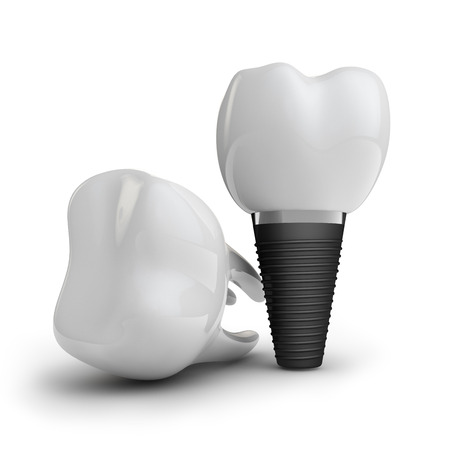 dental implants: tooth implant, and  molar on white background Stock Photo