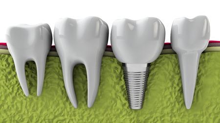 Molares y el implante en el hueso de la mandíbula, 3d Foto de archivo - 29507870