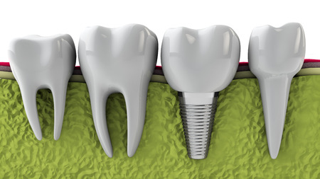 molars: molars and implant in the jaw bone, 3d render