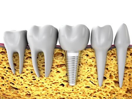molares: molares y el implante en el hueso de la mand�bula, de procesamiento 3D