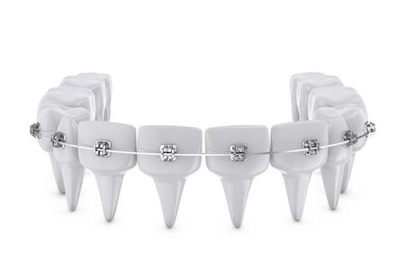 crochets dentaires métalliques montés sur les dents Banque d'images