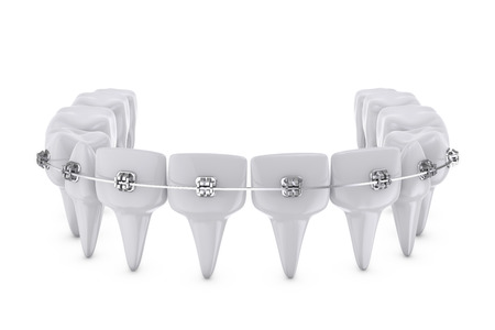 metal dental brackets mounted on the teeth