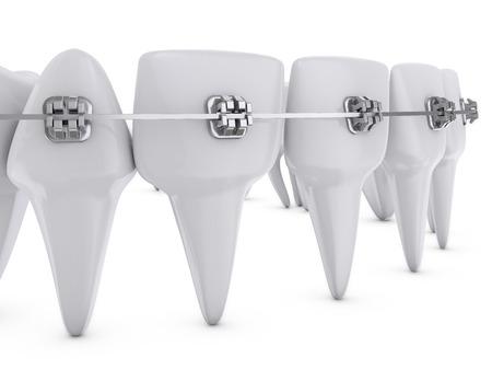 metal dental brackets mounted on the teeth