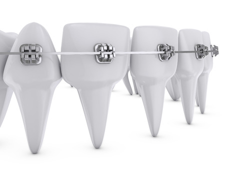 dental health: metal dental brackets mounted on the teeth