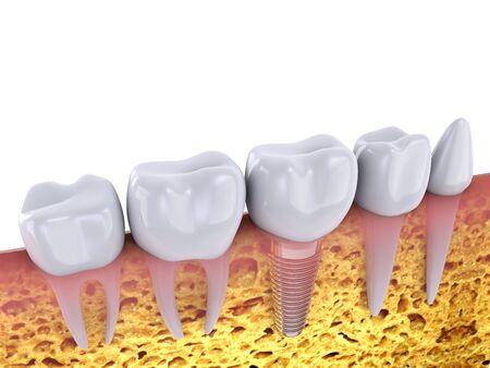 大臼歯と顎の骨は、3 d のレンダリングでインプラント 写真素材 - 45929176