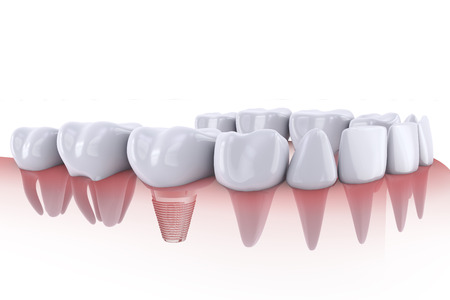 orthodontist: a teeth and dental implant 3d render Stock Photo