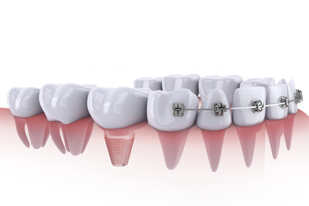 dental health: a teeth with braces and dental implants Stock Photo