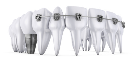 dental implants: a teeth with braces and dental implants, 3d render