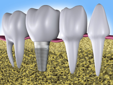 implantation: a teeth  and dental implants, 3d render Stock Photo