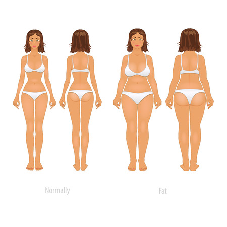 Vector illustration of different  body types, before and after plastic surgery. Vector