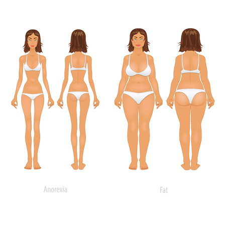 before: Vector illustration of different  body types, before and after plastic surgery.