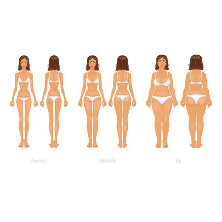 Vector illustration of different  body types, before and after plastic surgery.