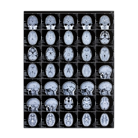 MRI of the brain. Isolated X-ray of a child's head. Magnetic resonance imaging. Day of the medical worker radiologist. Archivio Fotografico
