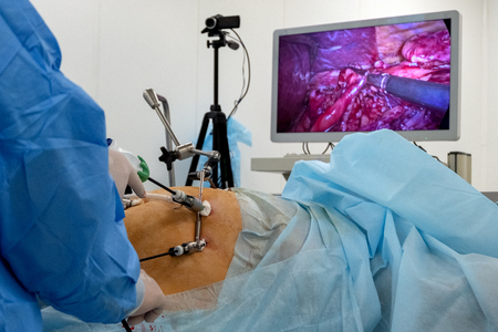 A team of surgeons using endo-instruments operate the patients abdomen. Endoscopy. Surgery on the body of a complete woman is broadcast online on a monitor or high-definition television. Operating room in the hospital. Surgical table. Endovideosurgery. Stock Photo