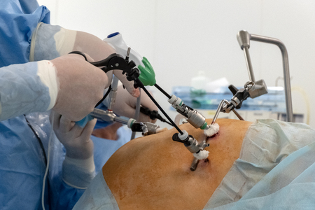 Doctors use endo-instruments and video cameras to perform surgery in the abdominal cavity of a fat woman. Endoscopy. Modern advances in medicine. The procedure in the operating room of the hospital Stock Photo