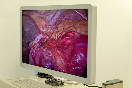 mage of the operation process inside the patients abdomen on the monitor or high-definition TV. The work of surgeons using endo video of surgical instruments. Laparoscopy. Close-up. Endoscopy surgical hospital.