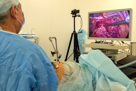 Operating room surgical hospital. Endoscopy. Record any video camera and live broadcast of the surgeon. Video image of the internal organs of the patient on the TV screen or high resolution monitor.