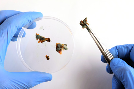 Close-up of hands in blue gloves with a petri dish and tweezers. Laboratory or examination. Pieces of the abstract biological substance covered with mold are provided for inspection and inspection. Imagens