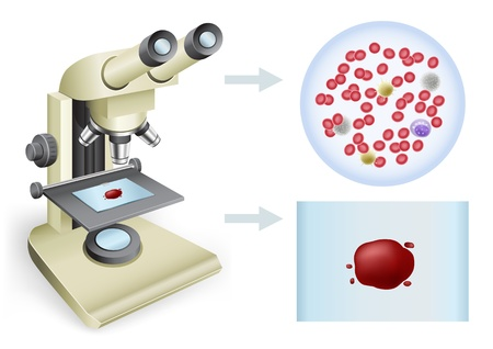 Analysis of blood under a microscope on a white background, two views Ilustração
