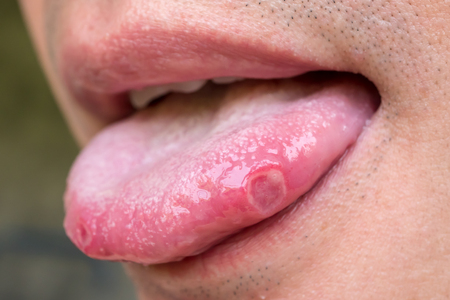 tongue with ulcers of adult man