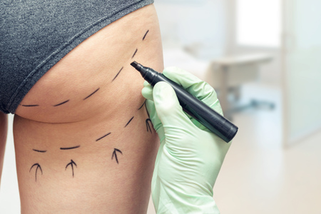plastic surgeon marking womans body for plastic surgery Stockfoto