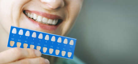 woman using teeth whitening shade guide. tooth bleaching. banner copy space Standard-Bild