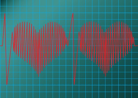 cardiograph: This image is a vector illustration and can be scaled to any size without loss of resolution.